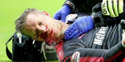 Futbolçu meydanda qana boyandı - FOTOLAR