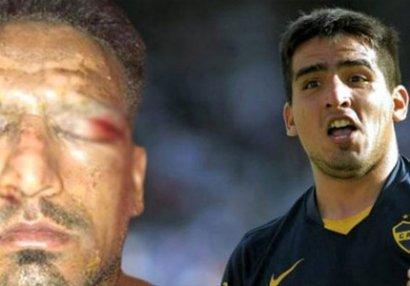Sifətində fişəng partlayan məşhur futbolçu tanınmaz hala düşdü - FOTO