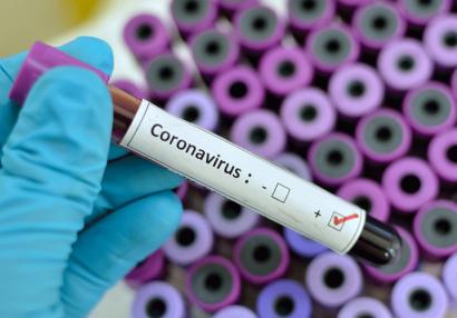 Klublarımızın koronavirus testlərinin nəticəsi açıqlandı